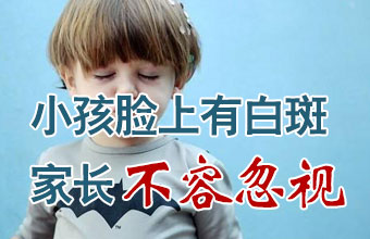 武汉脸上白癜风对孩子的危害有哪些