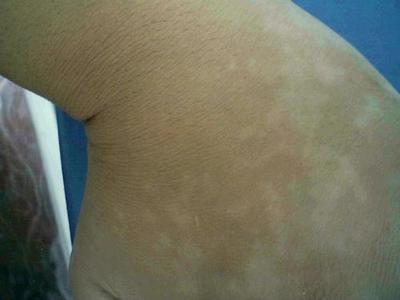 武汉白斑初期症状是什么