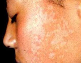 武汉白斑一般患者是多久能治好