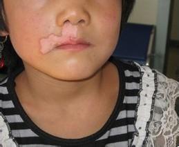 儿童病发白癜风到底有哪些症状