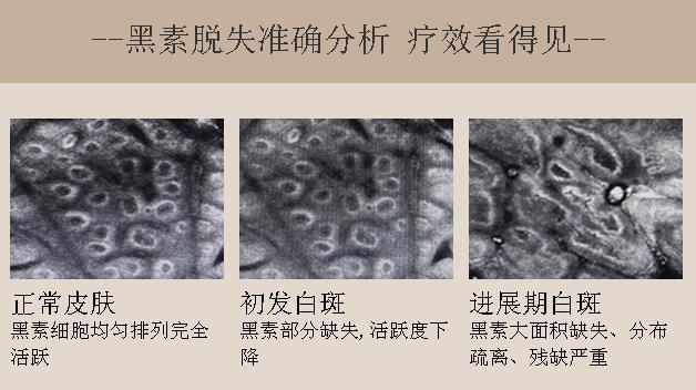 武汉白癜风治疗需要避免哪些误区