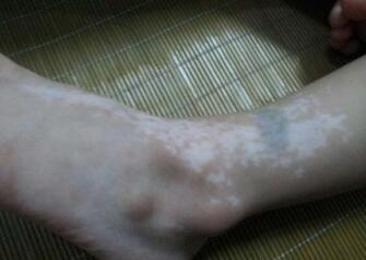武汉市儿童医院治白斑?儿童有效远离白斑病的方法?