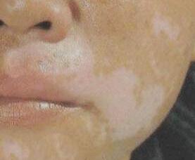 武汉地区治疗白癜风患者要怎样注意饮食?
