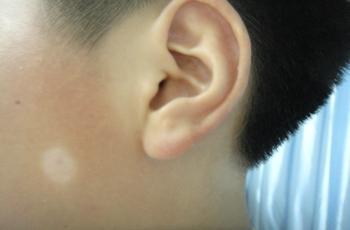 武汉有专门治疗白斑的医院吗?皮肤长白色的斑块是什么病