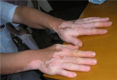 武汉哪个白癜风医院最好?武汉早期手部白癜风会有哪些症状呢?